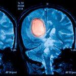 Nádory mozgu   Neurochirurgická ambulancia Endo Clinic Košice