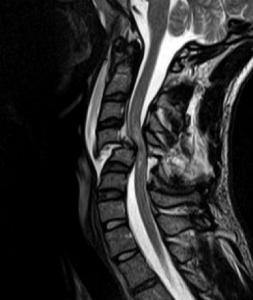 Úrazy chrbtice