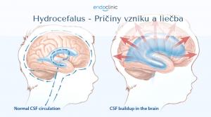 Hydrocefalus - Príčiny vzniku a liečba