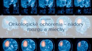 nádory mozgu